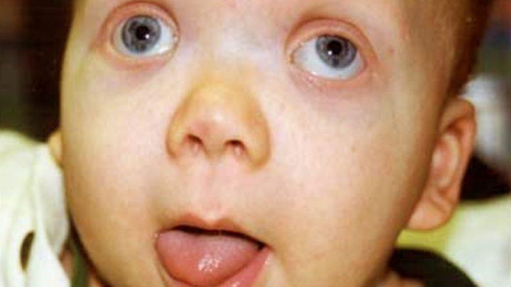 Синдром Беквита-Видеманна